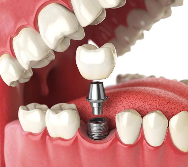 Stevensville Will I Need a Bone Graft for Dental Implants