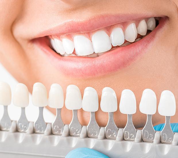 Stevensville Cosmetic Dentist