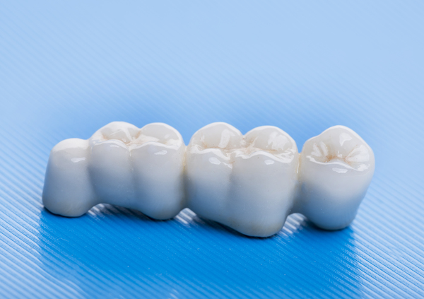 Consider A Dental Bridge To Replace Missing Teeth