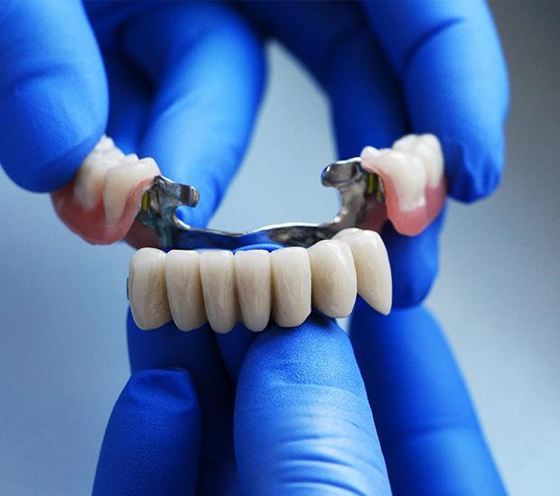 Stevensville Dental Bridges