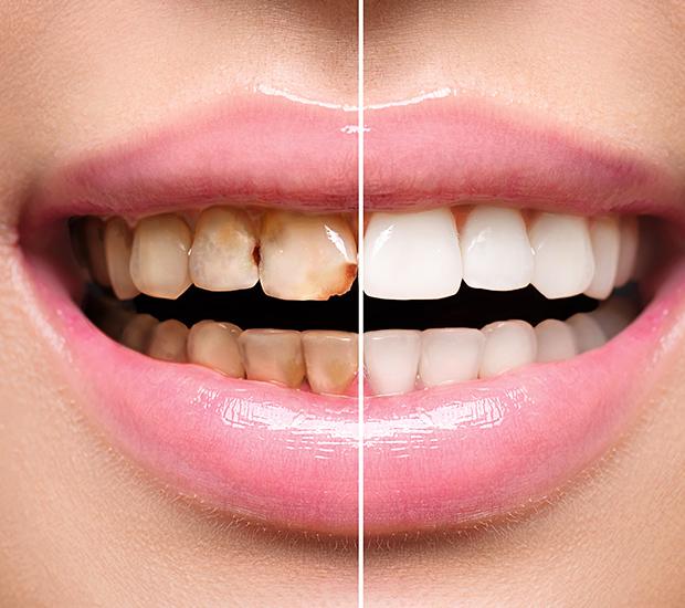 Stevensville Dental Implant Restoration