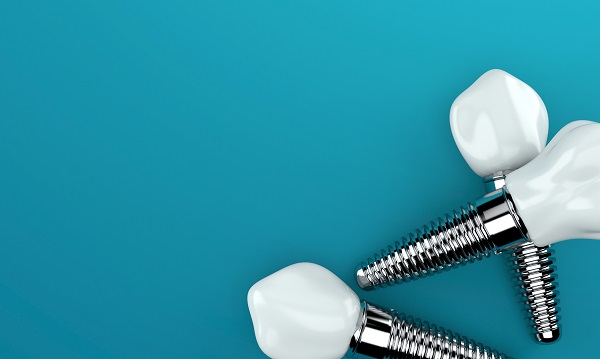 How To Care For Dental Implants