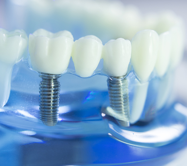 Stevensville Dental Implants