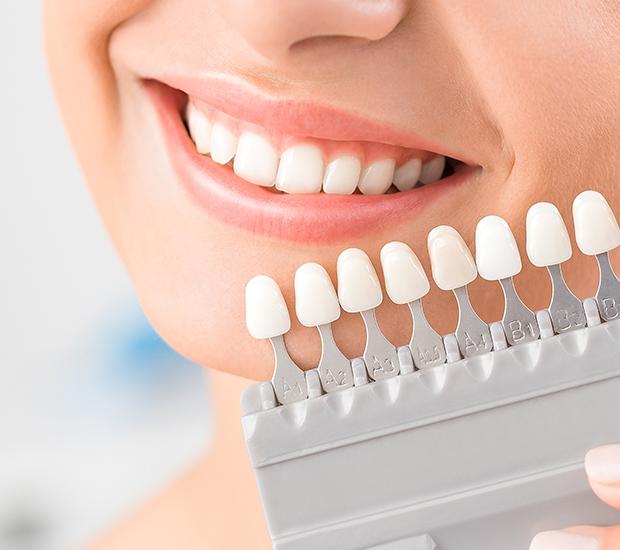 Stevensville Dental Veneers and Dental Laminates
