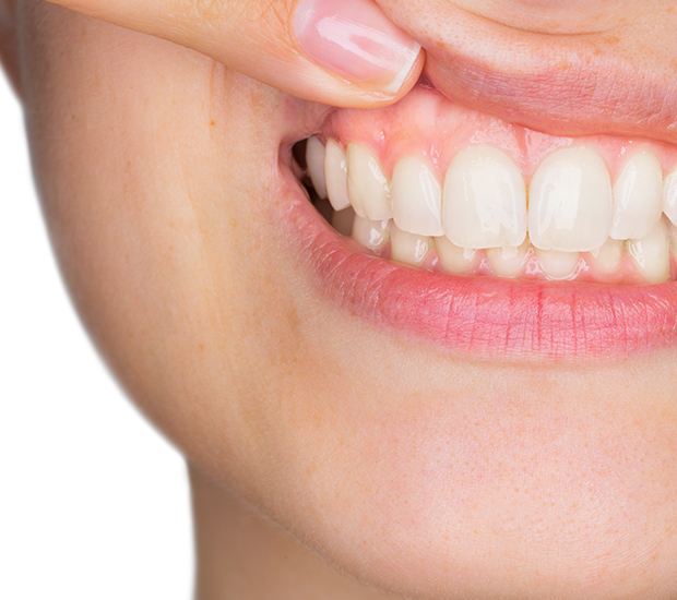 Stevensville Gum Disease